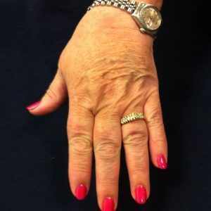 Mom hand II